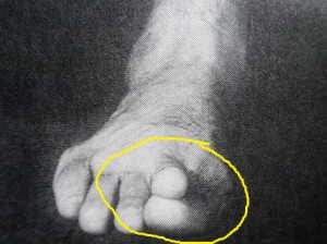 "Ankichi's unique forming of the toe-tip for ""ashisaki-geri""."